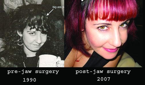 Jawsurgerybandacopy